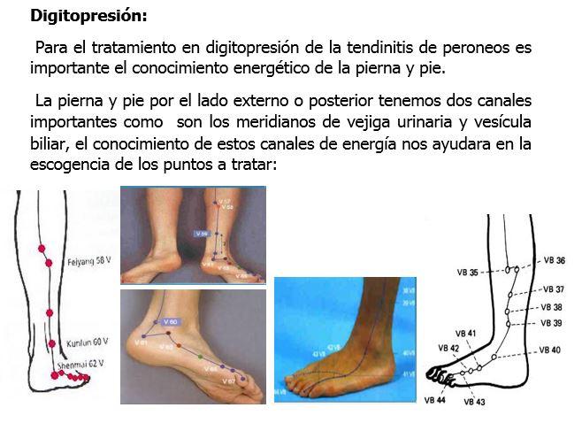 Digitopresión: Hágalo usted mismo: Tendinitis de tendones peroneos ...
